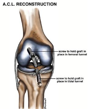 ACL Tears and ACL Injuries - Howard Luks MD